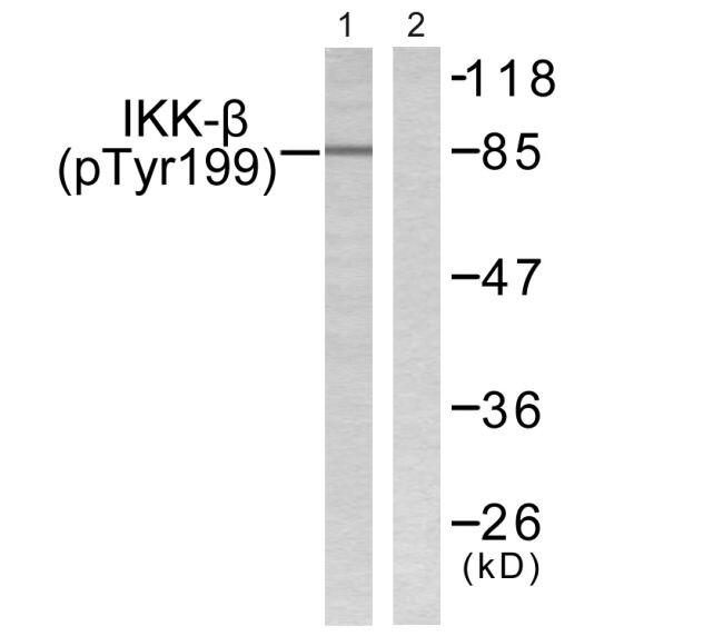Phospho-IKK beta (Tyr199) Antibody (PA5-38280) in Western Blot