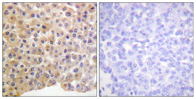 Phospho-INSR (Tyr1361) Antibody (PA5-38283) in Immunohistochemistry (Paraffin)