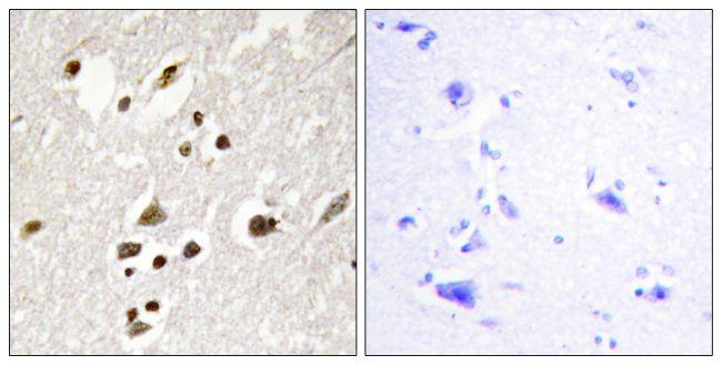 Phospho-IRF3 (Ser385) Antibody (PA5-38285) in Immunohistochemistry (Paraffin)
