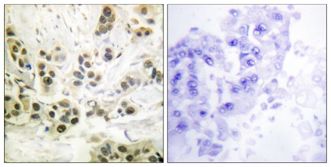 Phospho-Lamin A (Ser392) Antibody (PA5-38290) in Immunohistochemistry (Paraffin)