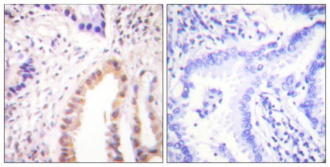 Phospho-MEF2D (Ser444) Antibody (PA5-38293) in Immunohistochemistry (Paraffin)