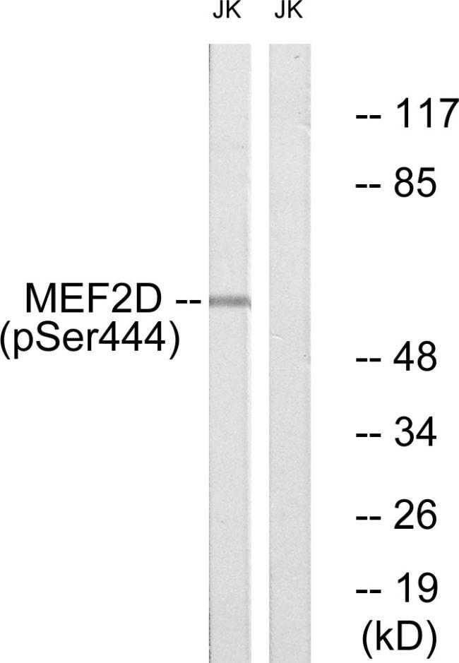 Phospho-MEF2D (Ser444) Antibody (PA5-38293) in Western Blot