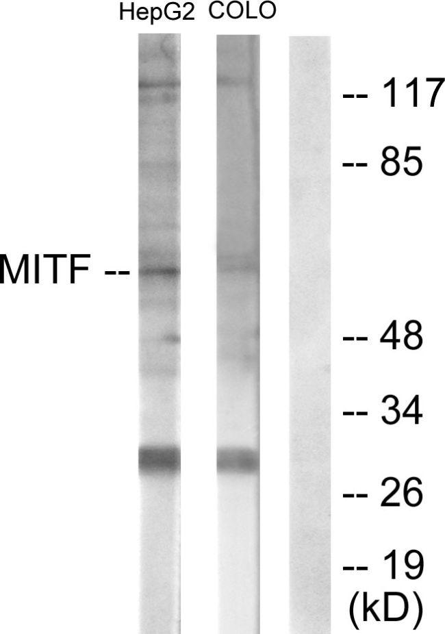 MiTF Antibody (PA5-38294) in Western Blot