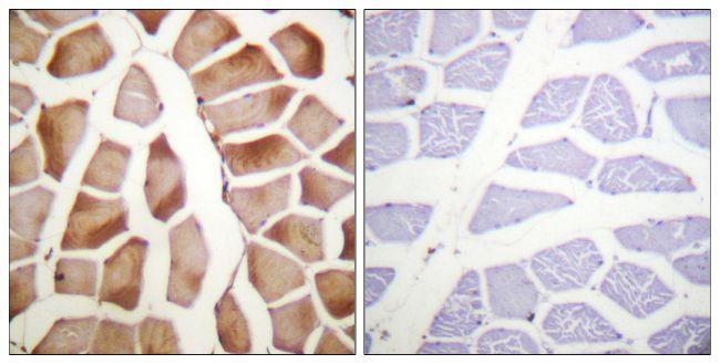 MRLC2 Antibody (PA5-38295) in Immunohistochemistry (Paraffin)