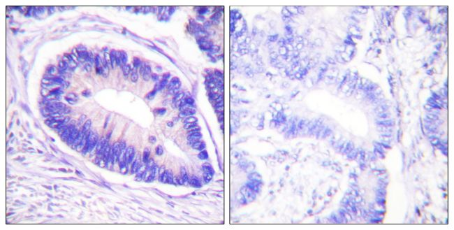 Phospho-MYPT1 (Thr853) Antibody (PA5-38299) in Immunohistochemistry (Paraffin)