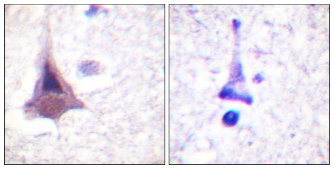 MYPT1 Antibody (PA5-38300)