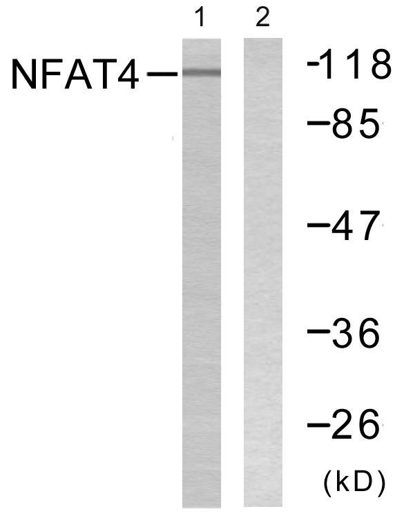 NFATC3 Antibody (PA5-38304) in Western Blot