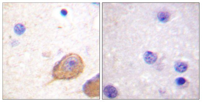 Phospho-nNOS (Ser852) Antibody (PA5-38305) in Immunohistochemistry (Paraffin)