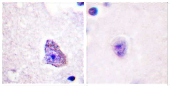 Phospho-p70 S6 Kinase (Thr229) Antibody (PA5-38306)
