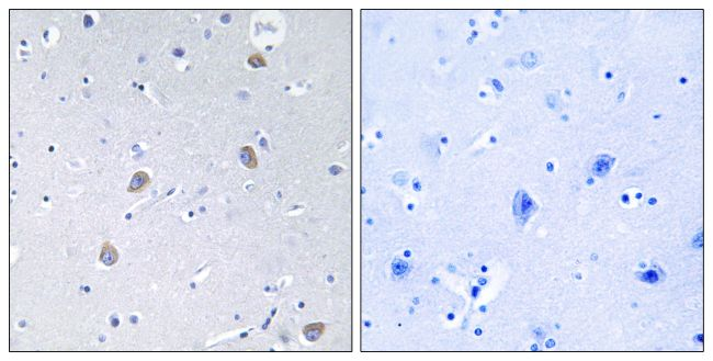 Phospho-p70 S6 Kinase (Ser371) Antibody (PA5-38307) in Immunohistochemistry (Paraffin)