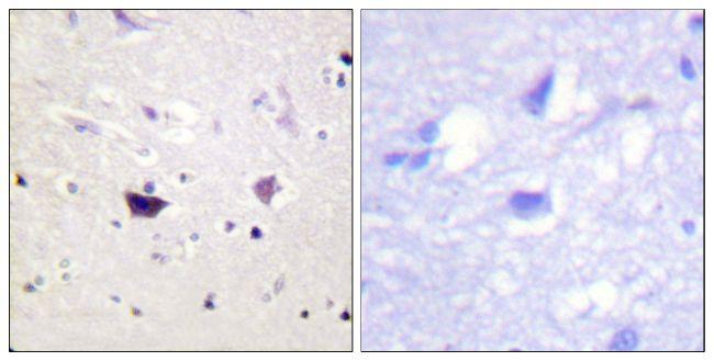 PAK1/2/3 Antibody (PA5-38311) in Immunohistochemistry (Paraffin)