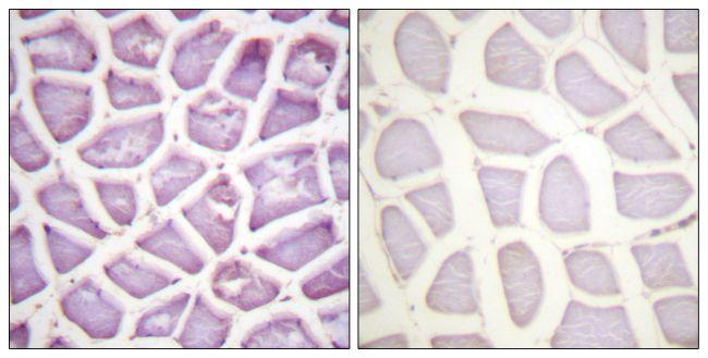 Phospho-Parkin (Ser131) Antibody (PA5-38312)