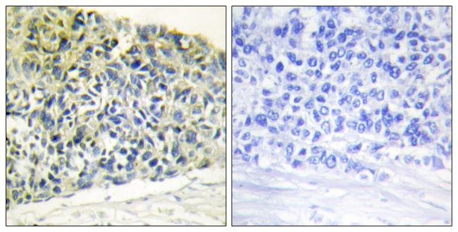 Phospho-PEA15 (Ser116) Antibody (PA5-38314)