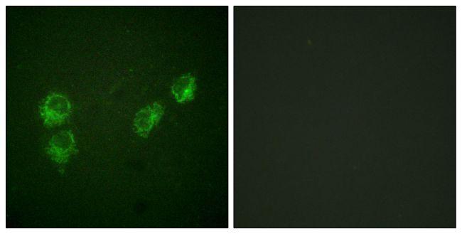 Phospho-PLN (Ser16, Thr17) Antibody (PA5-38317) in Immunofluorescence