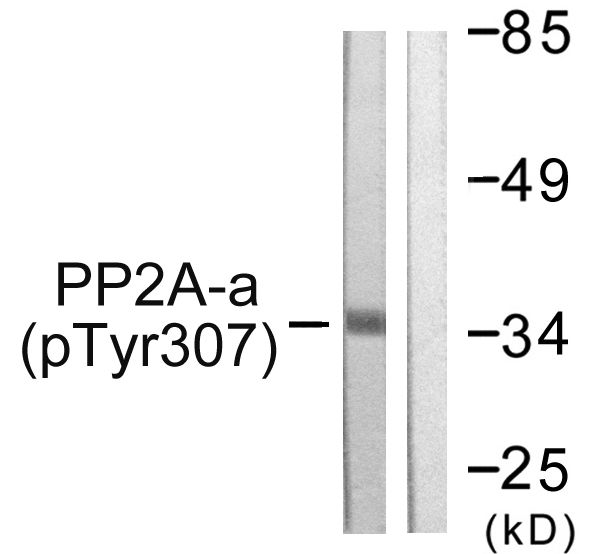 Phospho-PP2A alpha (Tyr307) Antibody (PA5-38321) in Western Blot