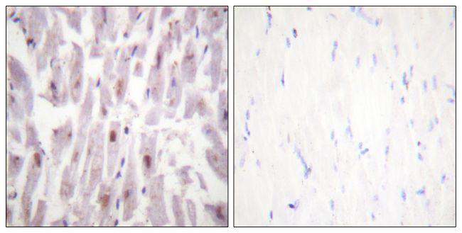Phospho-TRAP220 (Thr1457) Antibody (PA5-38322) in Immunohistochemistry (Paraffin)