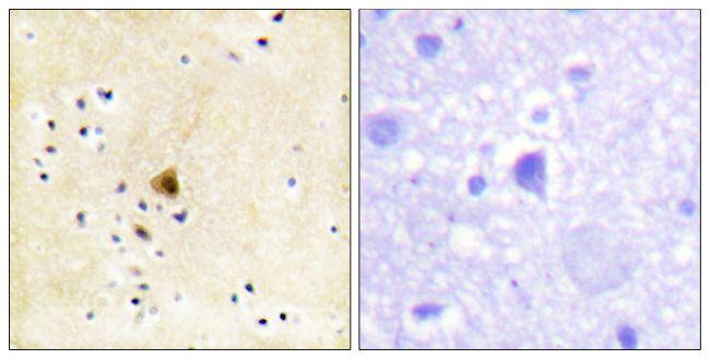 RyR2 Antibody (PA5-38329) in Immunohistochemistry (Paraffin)