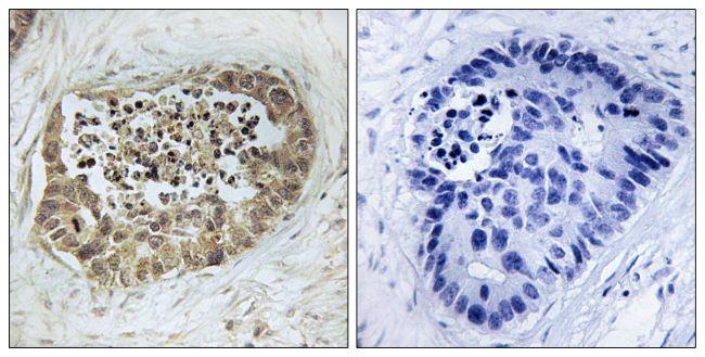 Phospho-SMC1 (Ser966) Antibody (PA5-38331) in Immunohistochemistry (Paraffin)