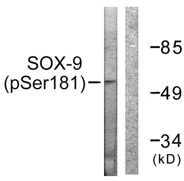 Phospho-SOX9 (Ser181) Antibody (PA5-38332) in Western Blot