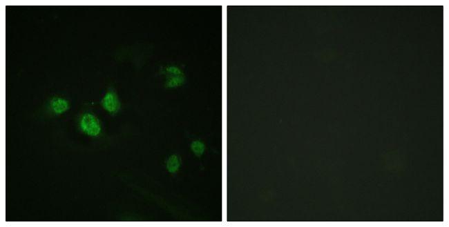 Phospho-SP1 (Thr453) Antibody (PA5-38333) in Immunofluorescence