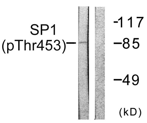 Phospho-SP1 (Thr453) Antibody (PA5-38333) in Western Blot