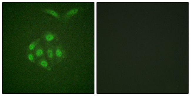 Phospho-Survivin (Thr117) Antibody (PA5-38334) in Immunofluorescence