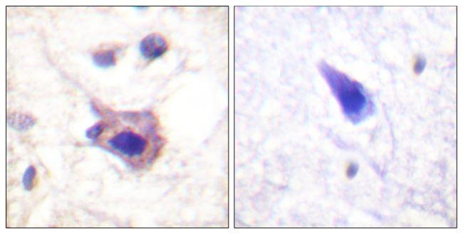 Phospho-Syk (Tyr323) Antibody (PA5-38335) in Immunohistochemistry (Paraffin)