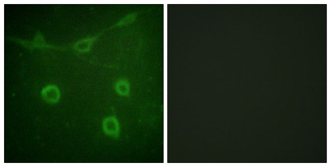 Phospho-TrkA (Tyr496) Antibody (PA5-38342) in Immunofluorescence