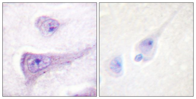 Phospho-WASP (Tyr290) Antibody (PA5-38346) in Immunohistochemistry (Paraffin)