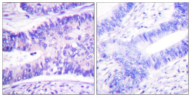 Phospho-WAVE1 (Tyr125) Antibody (PA5-38347) in Immunohistochemistry (Paraffin)