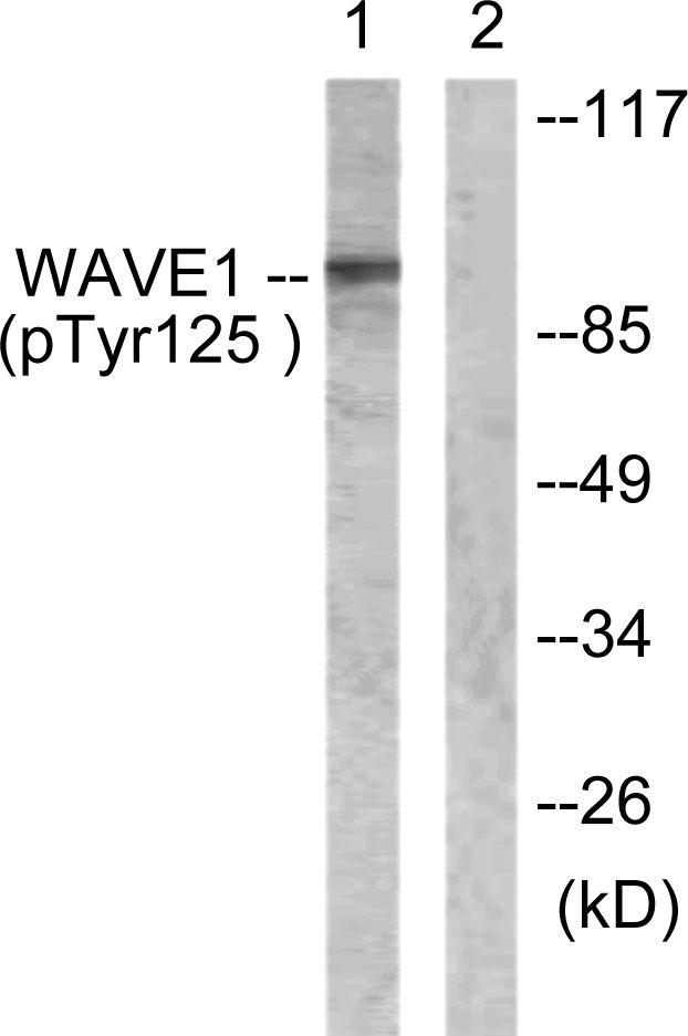 Phospho-WAVE1 (Tyr125) Antibody (PA5-38347) in Western Blot