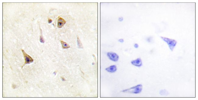 WAVE1 Antibody (PA5-38348) in Immunohistochemistry (Paraffin)