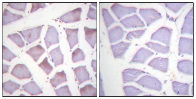 Phospho-XIAP (Ser87) Antibody (PA5-38349)