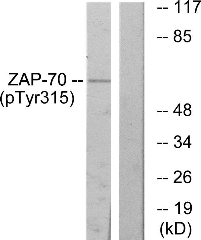 Phospho-ZAP70 (Tyr315) Antibody (PA5-38350) in Western Blot