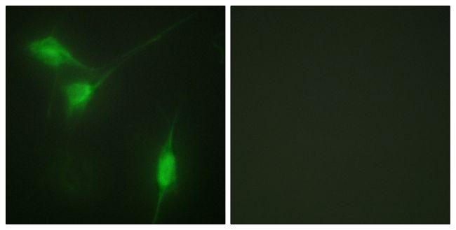 Phospho-AKT1 (Ser246) Antibody (PA5-38352) in Immunofluorescence