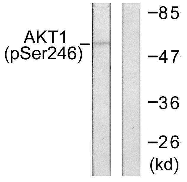 Phospho-AKT1 (Ser246) Antibody (PA5-38352) in Western Blot