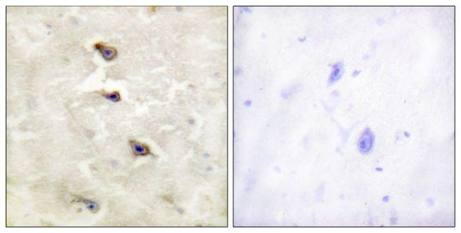 Phospho-ALK (Tyr1507) Antibody (PA5-38354)