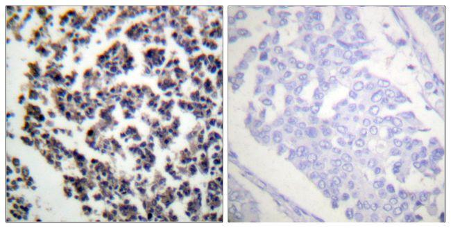 Phospho-BLNK (Tyr96) Antibody (PA5-38357)