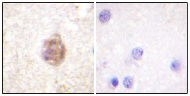 Phospho-IRS1 (Ser794) Antibody (PA5-38364)