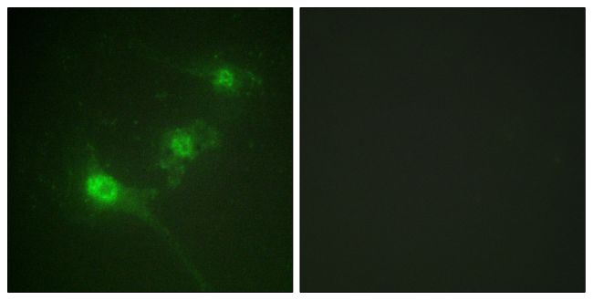 Phospho-LKB1 (Ser428) Antibody (PA5-38366) in Immunofluorescence