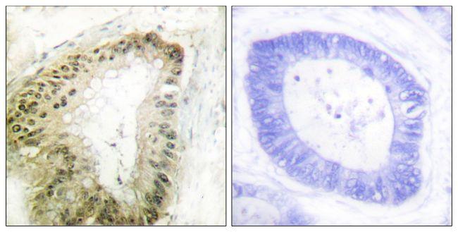 Phospho-LKB1 (Ser428) Antibody (PA5-38366) in Immunohistochemistry (Paraffin)