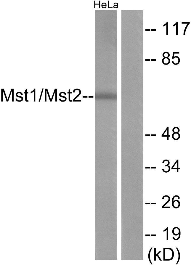 MST1/MST2 Antibody (PA5-38373) in Western Blot