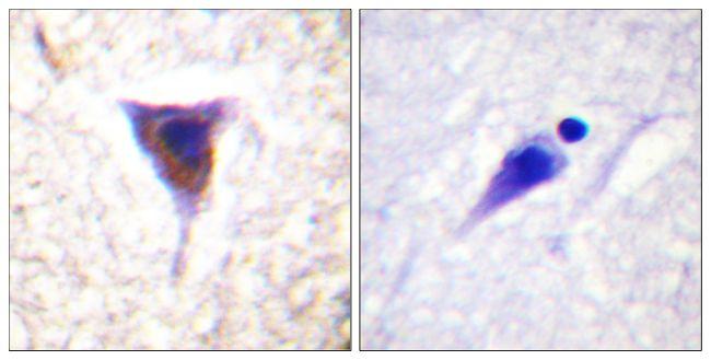 Phospho-mTOR (Ser2481) Antibody (PA5-38374) in Immunohistochemistry (Paraffin)