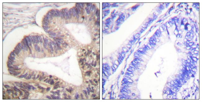 Phospho-PAK2 (Ser20) Antibody (PA5-38381) in Immunohistochemistry (Paraffin)