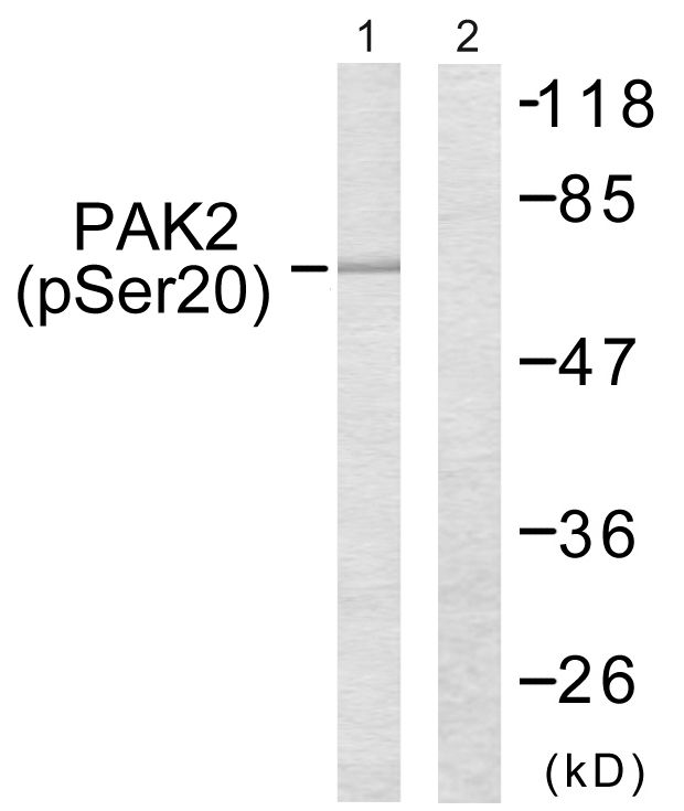 Phospho-PAK2 (Ser20) Antibody (PA5-38381) in Western Blot