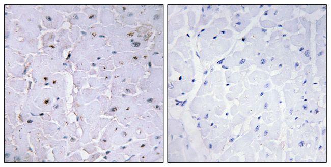 Phospho-PIN1 (Ser16) Antibody (PA5-38383) in Immunohistochemistry (Paraffin)