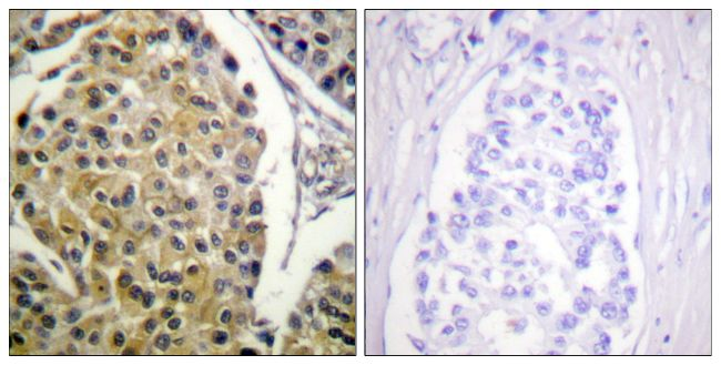 Phospho-PKC delta (Tyr313) Antibody (PA5-38385) in Immunohistochemistry (Paraffin)