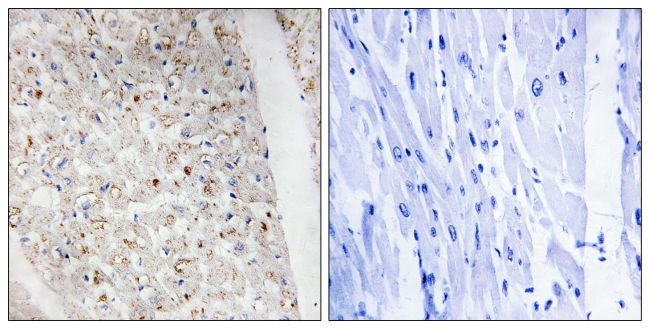 Phospho-PKC mu (Ser738, Ser742) Antibody (PA5-38386) in Immunohistochemistry (Paraffin)