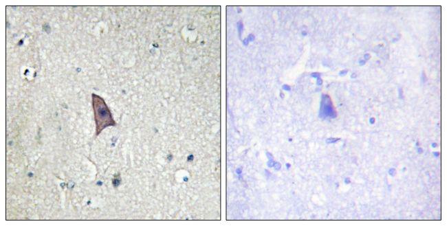 Phospho-TEK (Tyr1102) Antibody (PA5-38394)
