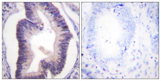 PFKFB2 Antibody (PA5-38401)